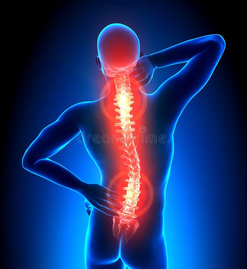 Mannetje Gekwetste Backbone - de Pijn van Ruggewervels royalty-vrije illustratie