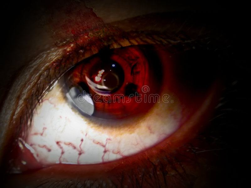 Pijnlijke beklemtoonde ogen stock foto