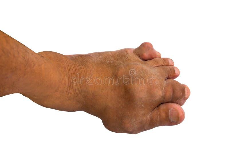 Pijnlijke die jichtontsteking of voetziekte op witte rug wordt geïsoleerd royalty-vrije stock afbeeldingen