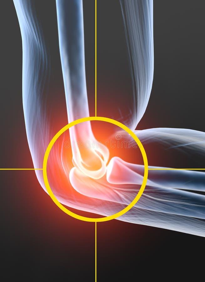 Pijnlijke elleboog gezamenlijke, reumatoïde artritis, medisch 3D illustratie royalty-vrije illustratie