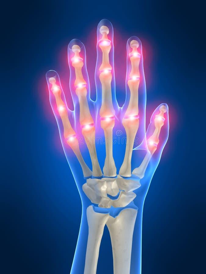 Pijnlijke hand vector illustratie