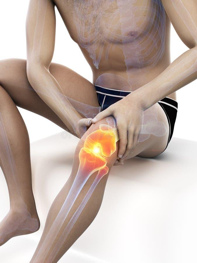 Pijnlijke knie vector illustratie