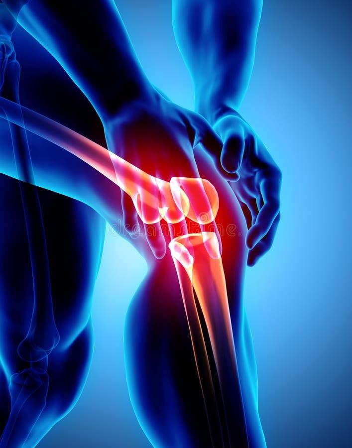 Pijnlijke knie - skeletröntgenstraal vector illustratie