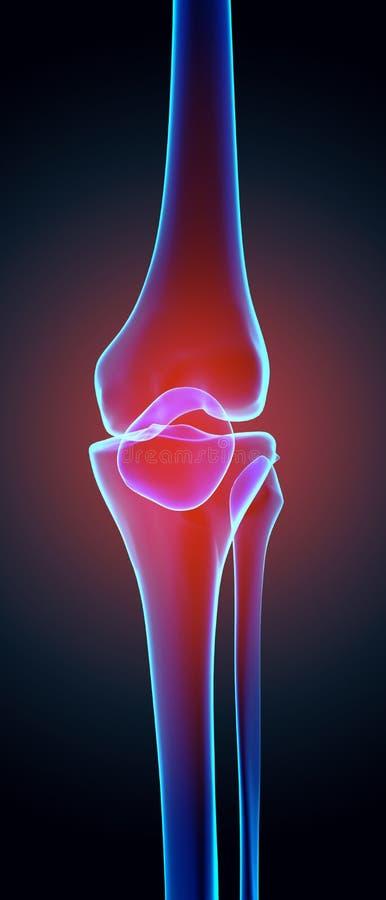 Pijnlijke knie - skeletröntgenstraal royalty-vrije illustratie