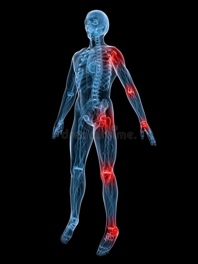 Pijnlijke verbindingen vector illustratie
