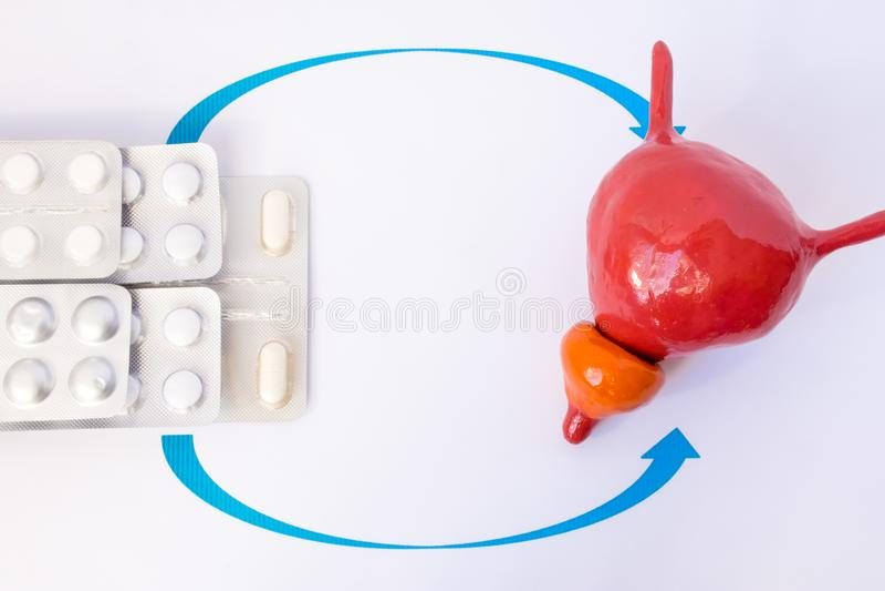 Pila de ampollas con las tabletas o de píldora indicada por las flechas en el modelo anatómico de la glándula y de la vejiga de p imágenes de archivo libres de regalías