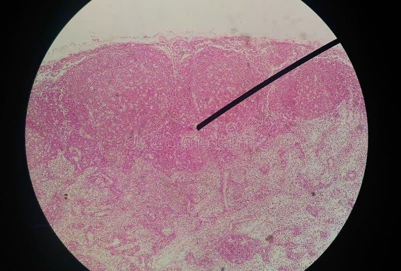 Pilhas do achado humano com microscópio imagem de stock