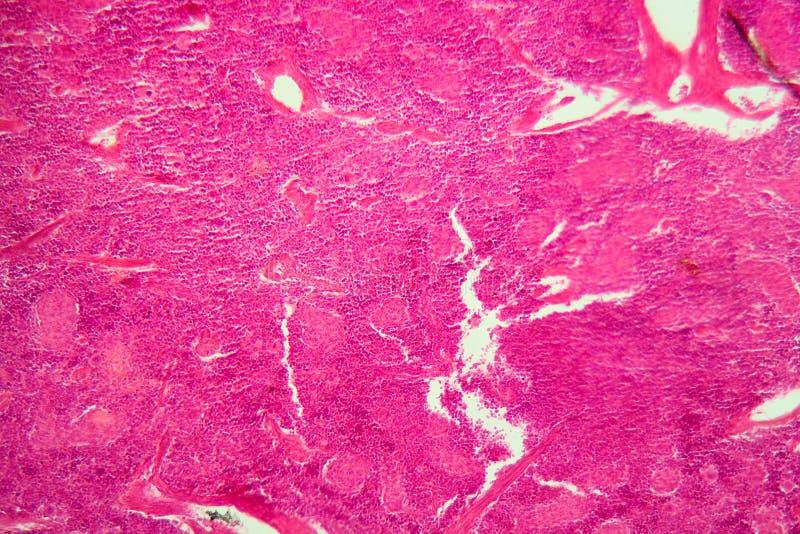 Pilhas do pâncreas sob o microscópio fotografia de stock royalty free