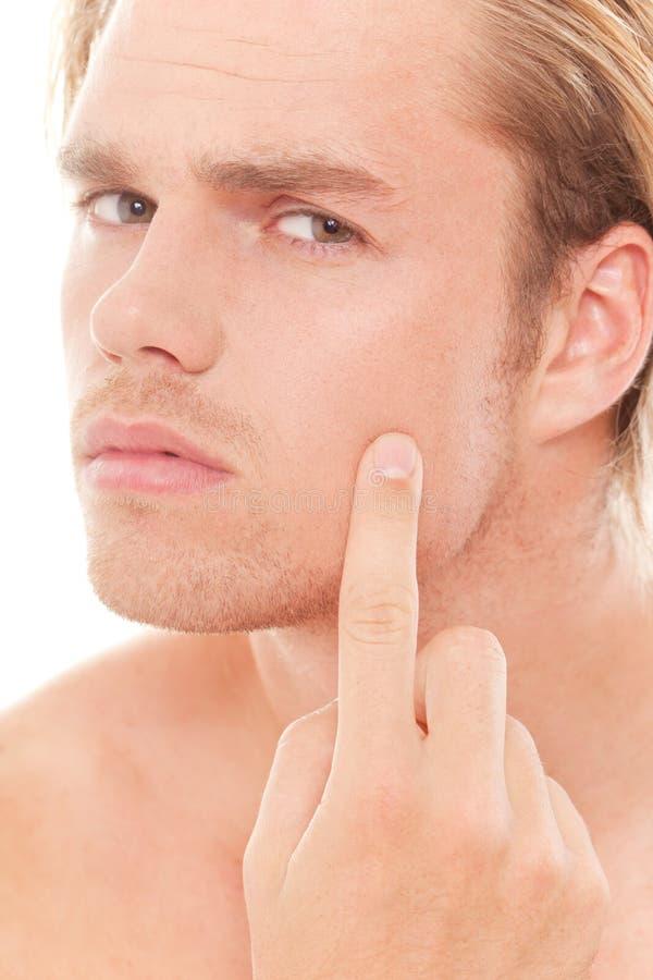 Pimple immagine stock libera da diritti