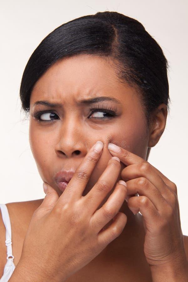 Pimple, ponto fotografia de stock