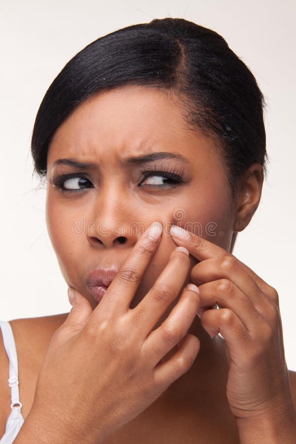 Pimple , spot. On african beauty woman face stock photography
