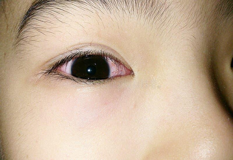Pink eye stock photos