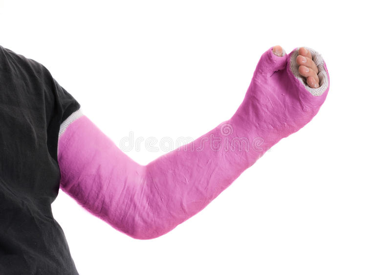 Pink long arm plaster / fiberglass cast. Close up of a pink long arm plaster / fiberglass cast covering the wrist, arm, and elbow after an accident, isolated on royalty free stock image