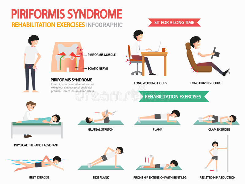 Piriformis syndromrehabilitering övar infographic, illust royaltyfri illustrationer