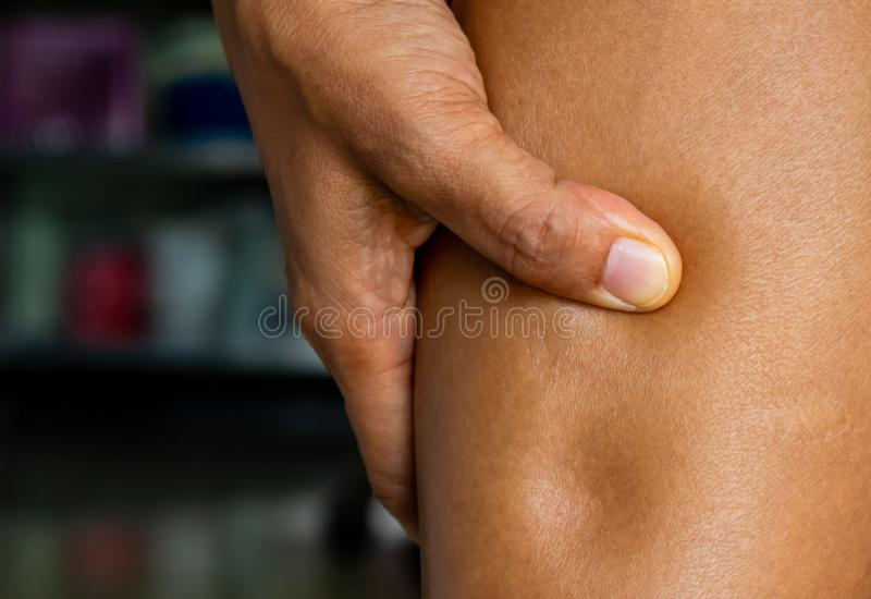 Pitting edema, clinical sign of heart disease patients or side effects of diclofenac oral drug, drug allergy. Pitting edema, clinical sign of heart disease royalty free stock photography