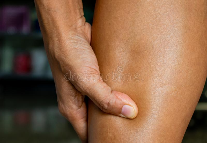 Pitting edema, clinical sign of heart disease patients or side effects of diclofenac oral drug, drug allergy. Pitting edema, clinical sign of heart disease stock image