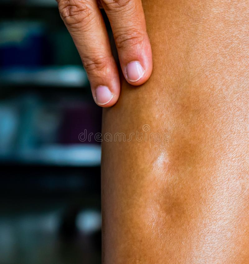 Pitting edema,sign and symptom of heart failure for this case it& x27;s an allergy of diclofenac oral drug,seriously side-effects. Pitting edema,sign and royalty free stock photos
