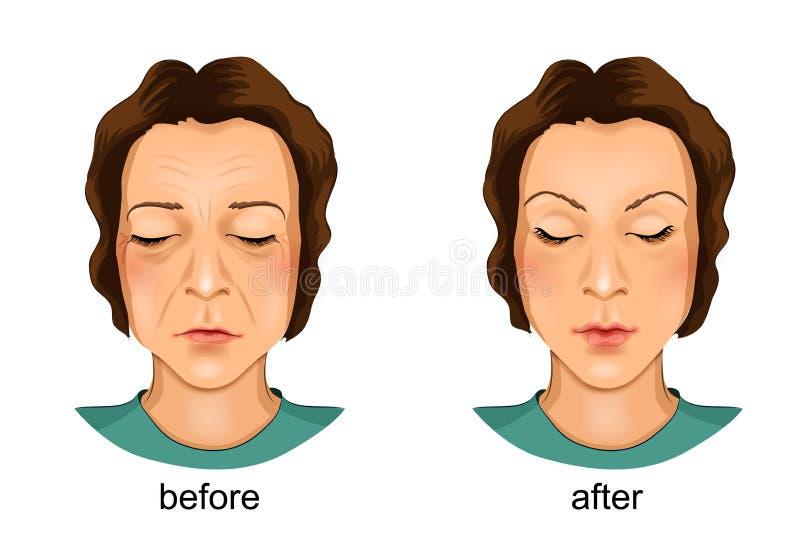 Plástico da cara Antes e depois ilustração do vetor