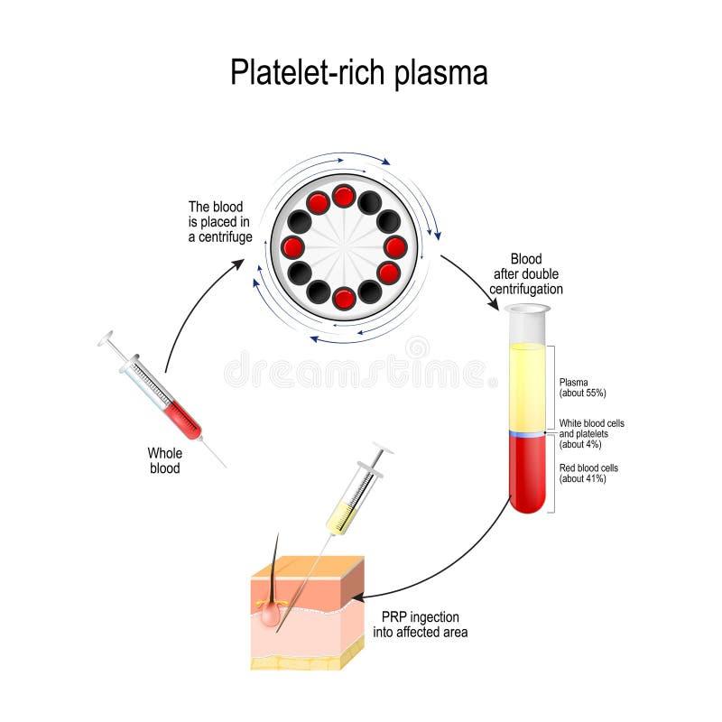 Pl?ttchen-reiches Plasma PRP ist ein medizinisches Verfahren für Haarwachstumsanregung lizenzfreie abbildung