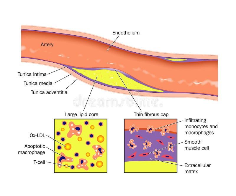 Placa del atheroma de la arteria ilustración del vector