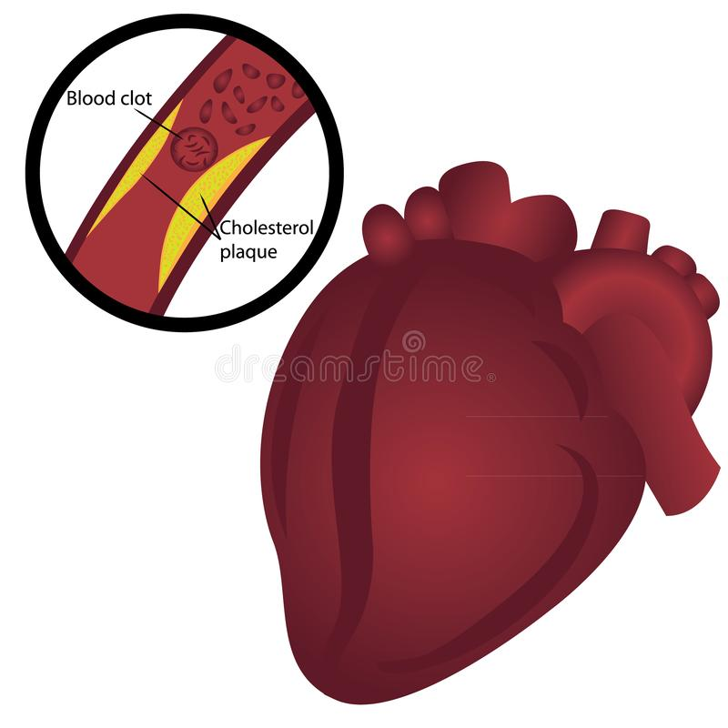Placa del colesterol del coágulo de sangre en ataque del corazón a la arteria stock de ilustración