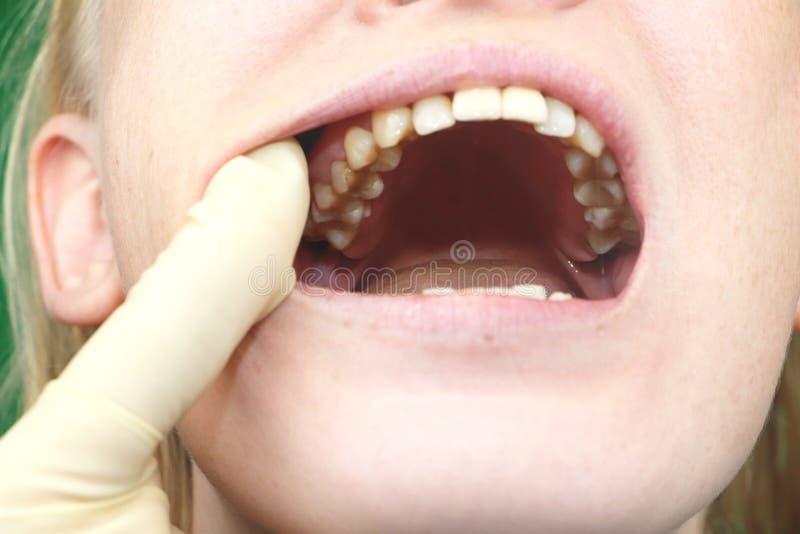 Placa del paciente, piedra Tratamiento de la placa dental, higiene oral profesional, el concepto de la odontología de daño a fuma fotografía de archivo libre de regalías