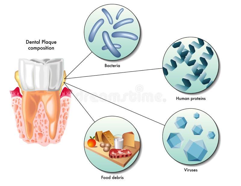 Placa dental ilustración del vector