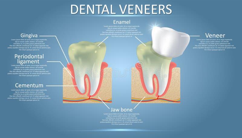 Placages dentaires diagramme, affiche éducative de vecteur, diagramme illustration stock