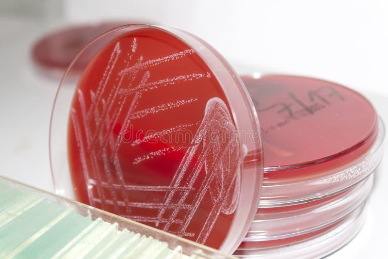 Placas de Petri con agar de sangre y las colonias bacterianas imagen de archivo