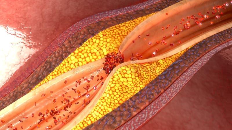 Placca dell'arteria coronaria immagini stock