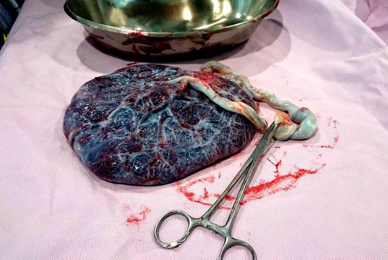 placenta fotografia de stock royalty free