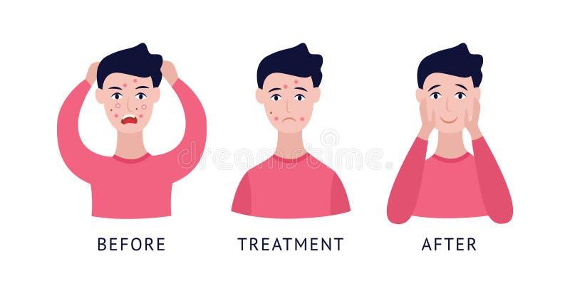 Placez de l'homme avec l'acné avant et après le style plat de bande dessinée de traitement illustration stock