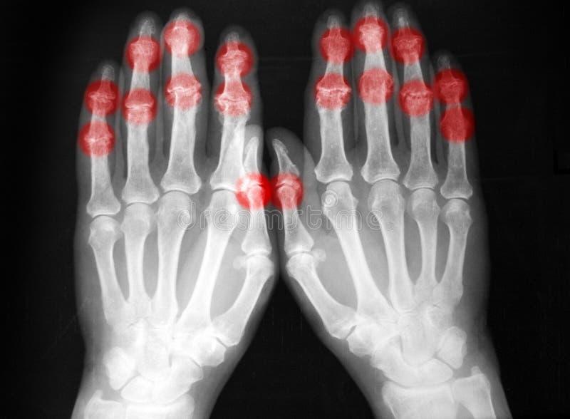 Plain film, radiography, of both hands, arthritis stock photo