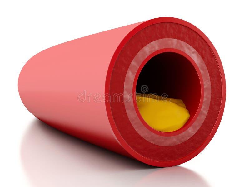 Plakette des Cholesterins 3d in der Arterie lizenzfreie abbildung