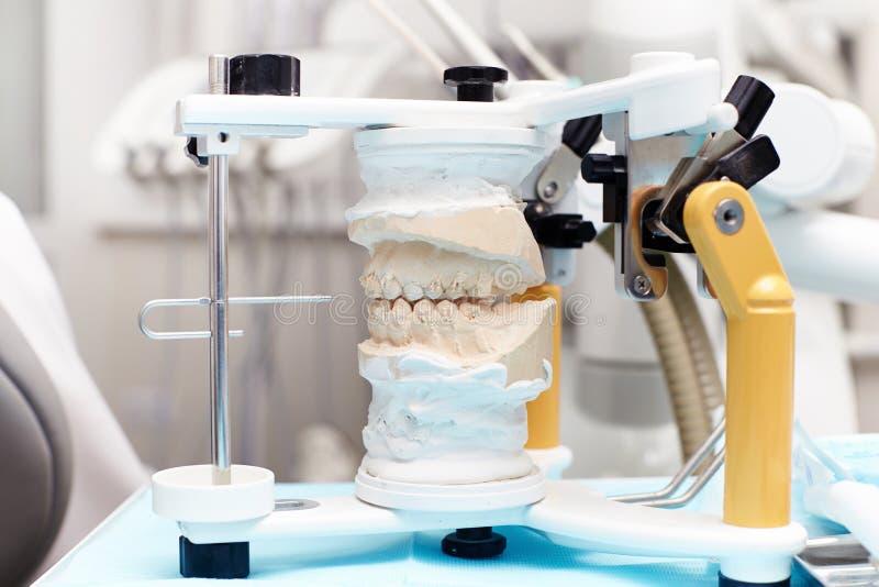 Plan rapproché d'un modèle de plâtre des dents pour la prosthétique image libre de droits