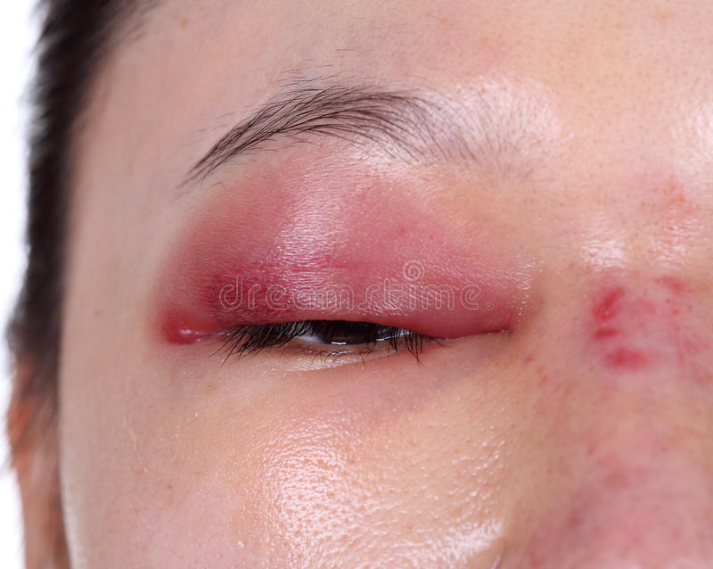 Plan rapproché de bosse supérieure de couvercle d'oeil après rhinoplastie photo stock
