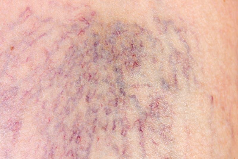 Plan rapproché de derme avec des veines variqueuses photos libres de droits
