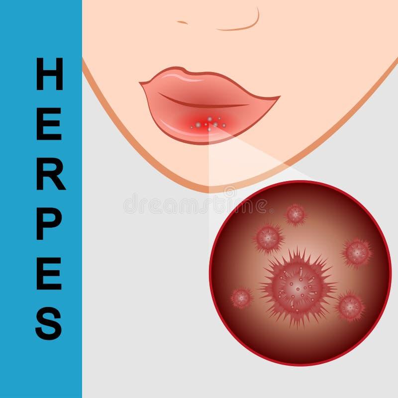 Plan rapproché de lèvres avec l'herpès froid, endolori sur la lèvre illustration libre de droits