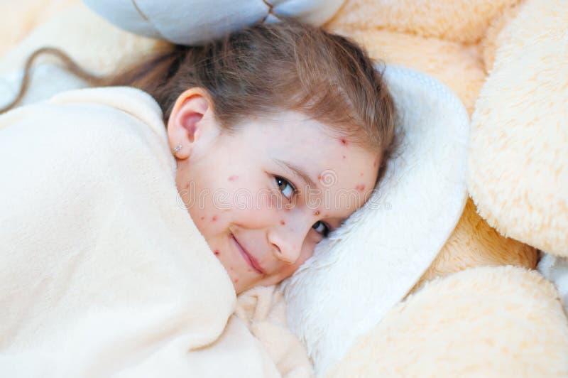 Plan rapproché de petite fille drôle mignonne dans le lit Virus de Varicella ou éruption de bulle de varicelle sur l'enfant photo stock