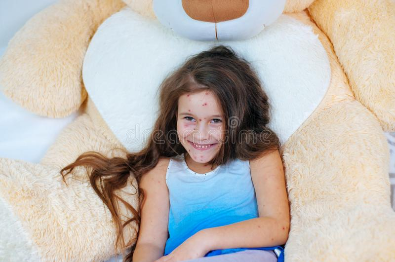 Plan rapproché de petite fille drôle mignonne près de l'ours de nounours Virus de Varicella ou éruption de bulle de varicelle sur photo stock