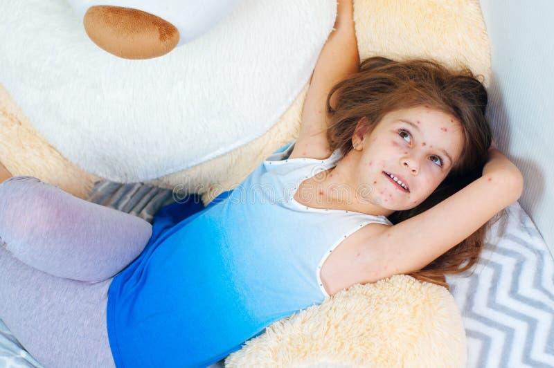 Plan rapproché de petite fille drôle mignonne près de l'ours de nounours Virus de Varicella ou éruption de bulle de varicelle sur images stock