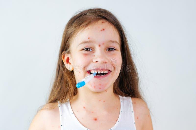 Plan rapproché de petite fille drôle mignonne Virus de Varicella ou éruption de bulle de varicelle sur l'enfant photographie stock libre de droits