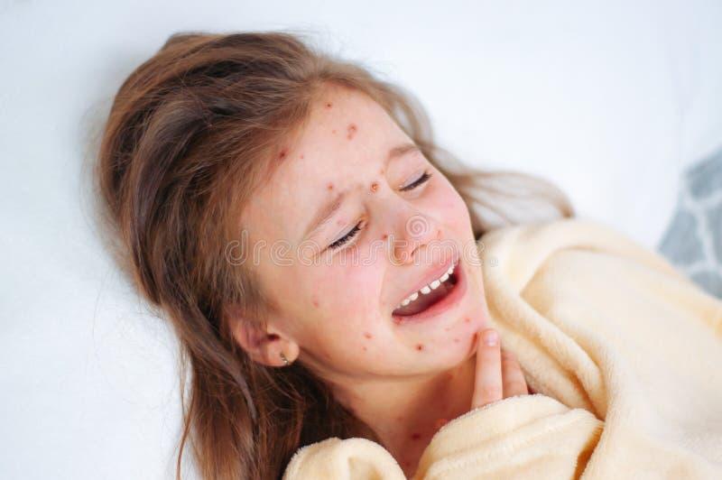 Plan rapproché de petite fille pleurante triste mignonne dans le lit Virus de Varicella ou éruption de bulle de varicelle sur l'e photographie stock