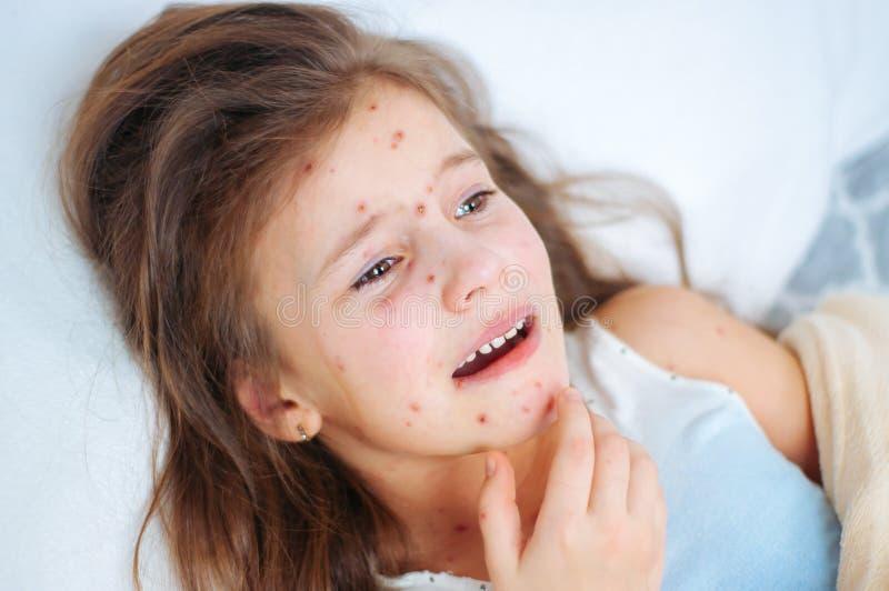 Plan rapproché de petite fille pleurante triste mignonne dans le lit Virus de Varicella ou éruption de bulle de varicelle sur l'e photographie stock libre de droits