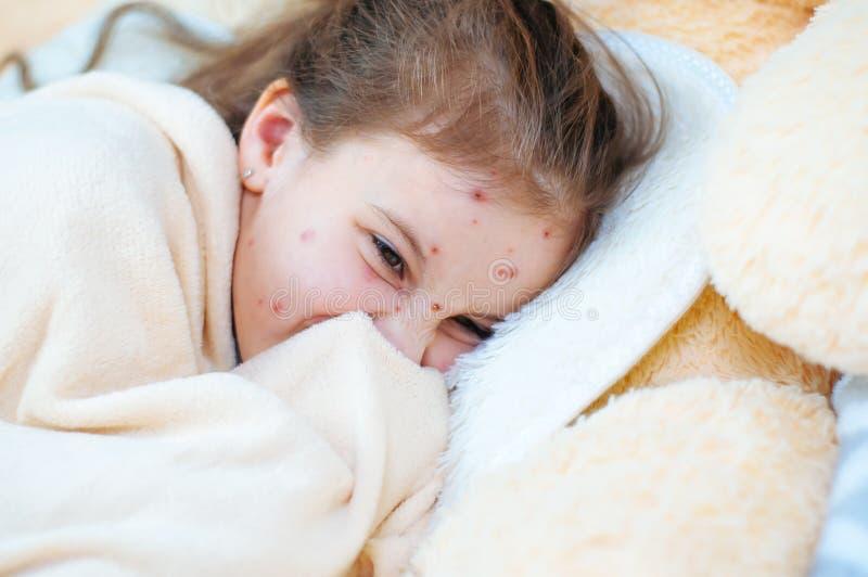 Plan rapproché de petite fille triste mignonne dans le lit Virus de Varicella ou éruption de bulle de varicelle sur l'enfant photos stock