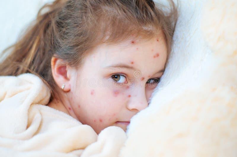 Plan rapproché de petite fille triste mignonne dans le lit Virus de Varicella ou éruption de bulle de varicelle sur l'enfant images libres de droits