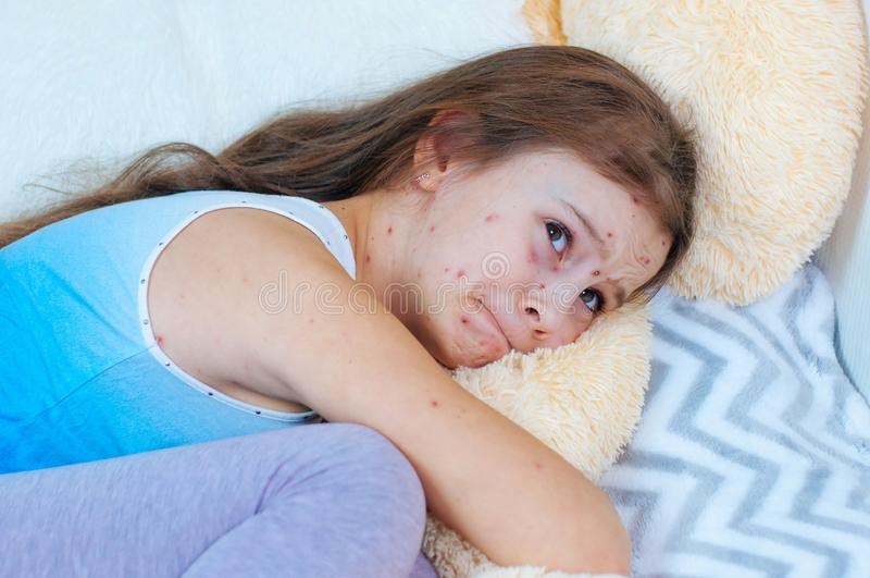 Plan rapproché de petite fille triste mignonne près de l'ours de nounours Virus de Varicella ou éruption de bulle de varicelle su image stock