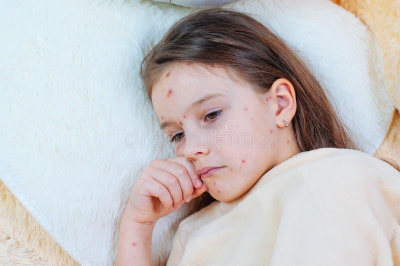 Plan rapproché de petite fille triste mignonne près de l'ours de nounours Virus de Varicella ou éruption de bulle de varicelle su images stock
