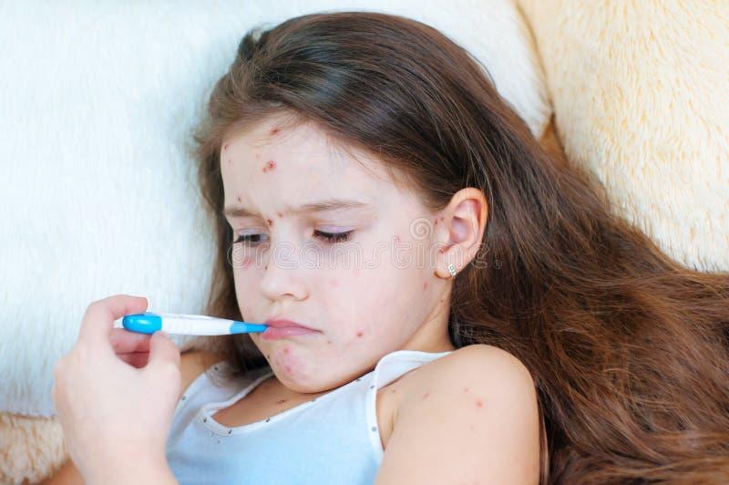 Plan rapproché de petite fille triste mignonne Virus de Varicella ou éruption de bulle de varicelle sur l'enfant images libres de droits