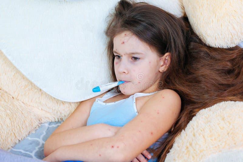 Plan rapproché de petite fille triste mignonne Virus de Varicella ou éruption de bulle de varicelle sur l'enfant photos libres de droits